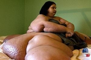 Она похудела на 360 килограмм! Как сейчас выглядит эта женщина | ФОТО и Видео