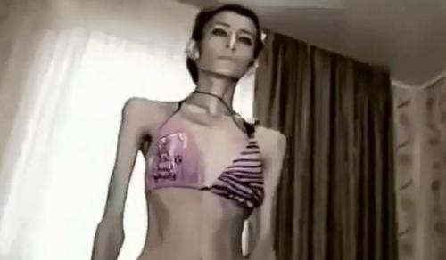 Самая худая женщина в мире весит всего 21 кг
