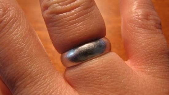 Как снять кольцо с опухшего пальца за 30 секунд