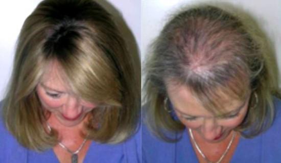 Всего один ингредиент остановит выпадение волос. Они опять начнут расти!