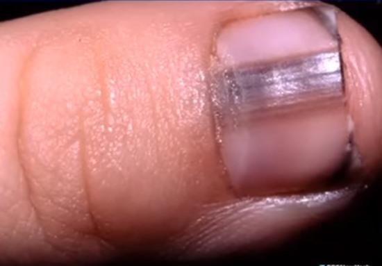 Такой синяк на ногтях может скрывать смертельную болезнь