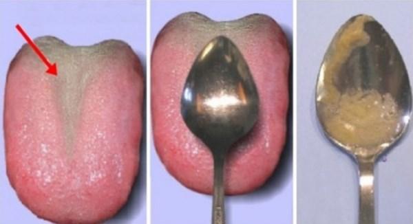 Этот тест за 60 секунд, расскажет больны ли ваши внутренние органы!