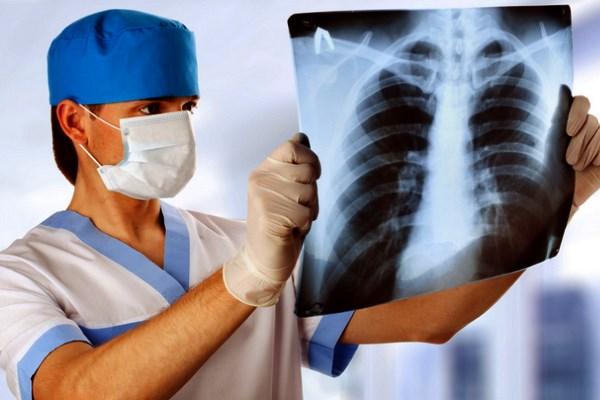 Вреден ли рентген легких?